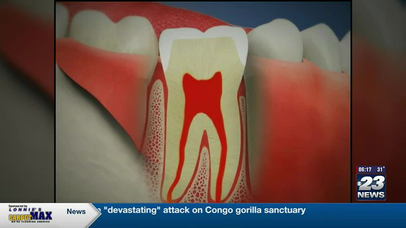Tooth Talk with Dr. T:  Root Canal Therapy
